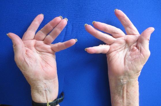 Болят суставы пальцев ног - что делать