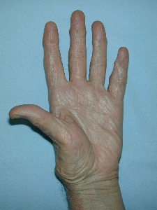 thumb carpometacarpal arthrosis