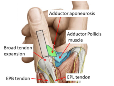 Thumb Ligaments Anatomy - www.hooperswar.com - Exaple Resume And ...